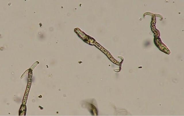 schistosoma-640