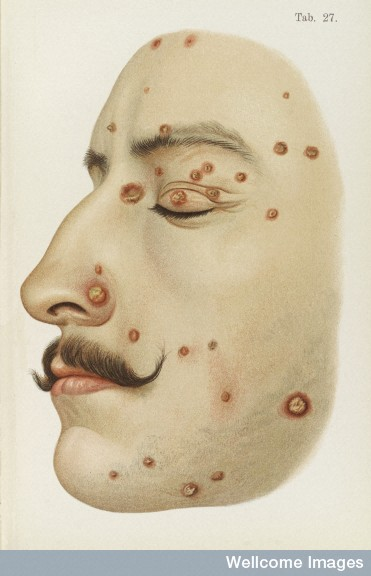L0038203 Illustration of face diseased with Syphilis