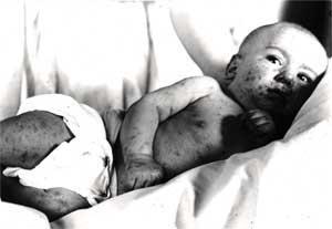 smallpox_hartzell2