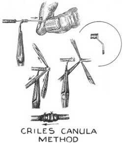 Crile's cannula