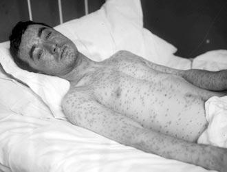 Dermatology_Lewis