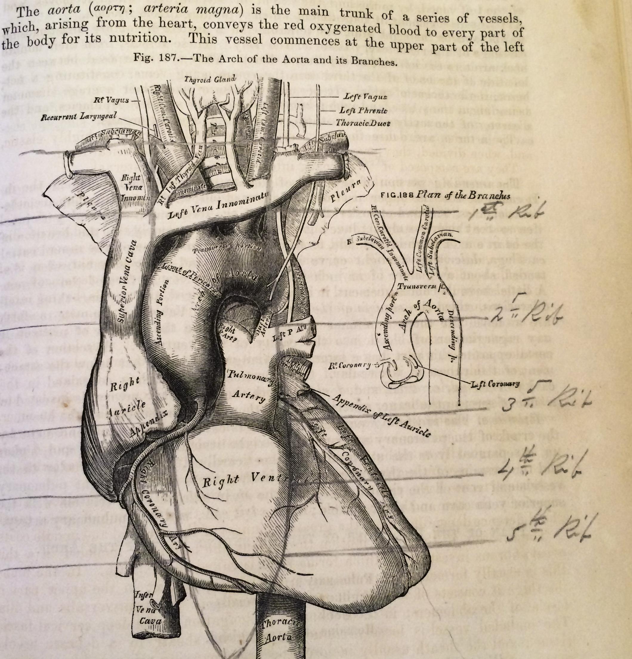 Under Your Skin: the Anatomy Artwork of H.V. Carter - Dittrick ...
