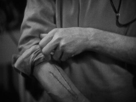 werewolf-of-london-frame-5: The v-shaped scar on Glendon's arm
